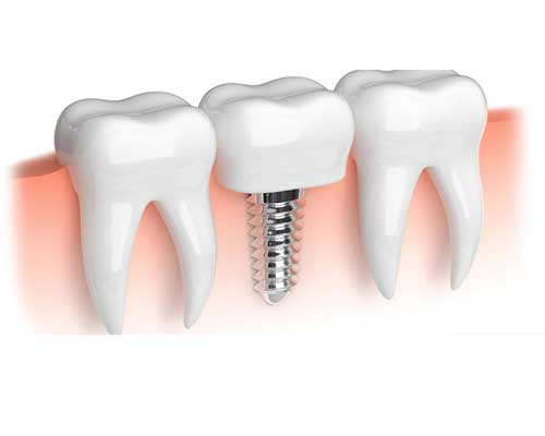 Dental implant clinic in Zirakpur Chandigarh