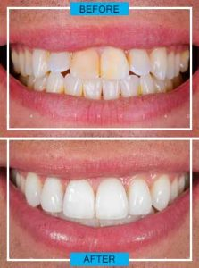 http://smilewide.in/wp-content/uploads/2017/12/cosmetic-dentistery.jpg