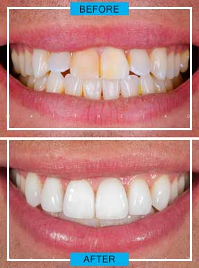 https://smilewide.in/wp-content/uploads/2017/12/cosmetic-dentistery.jpg