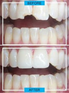 https://smilewide.in/wp-content/uploads/2017/12/dental-crowns-before-after.jpg