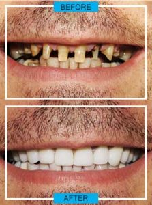 https://smilewide.in/wp-content/uploads/2017/12/dental-emergency-before-after.jpg
