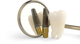 https://smilewide.in/wp-content/uploads/2017/12/dental_implants.jpg