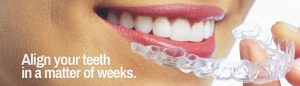 https://smilewide.in/wp-content/uploads/2017/12/clear-aligners-1-1030x294.jpg