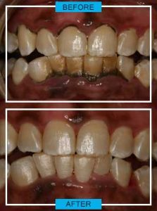 https://smilewide.in/wp-content/uploads/2017/12/gum-disease-before-after.jpg