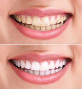 http://smilewide.in/wp-content/uploads/2017/12/smiling-teeth-after-before-1.jpg
