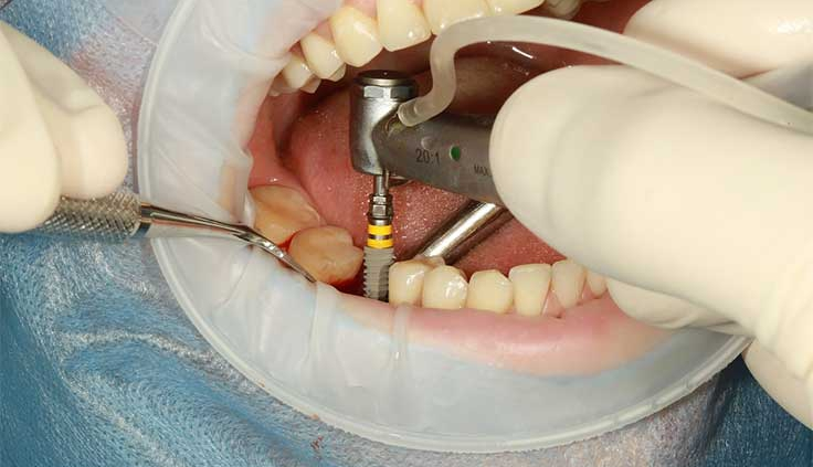 dental implants zirakpur
