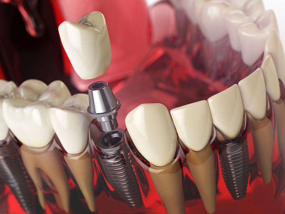 Dental Implants in Panchkula