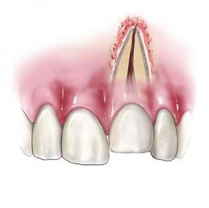 Tooth Intrusion