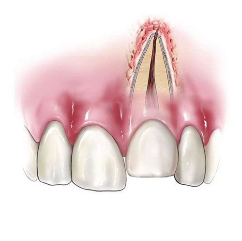 Tooth Intrusion
