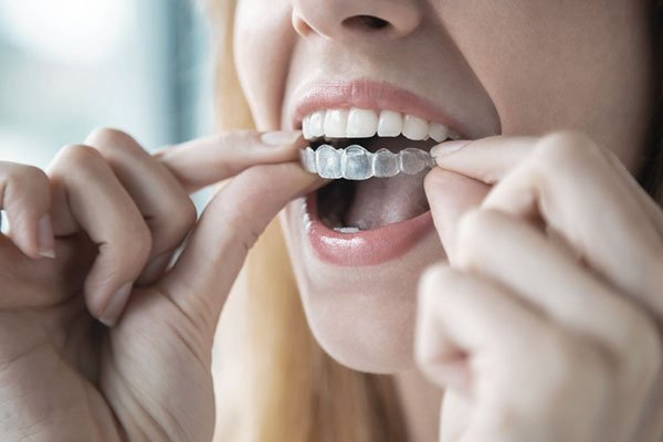 Orthodontists in Zirakpur