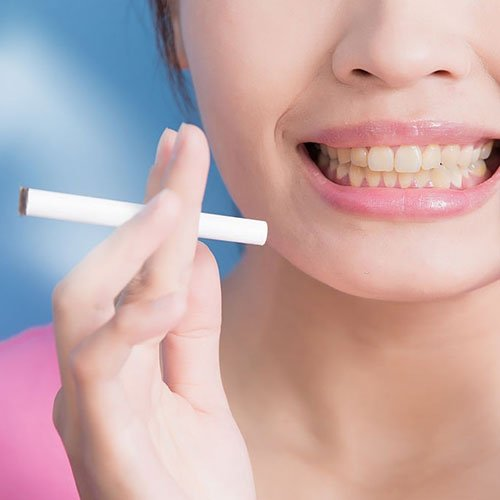 Tooth Plaque Causes