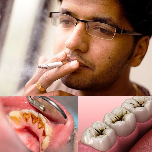 Cause of Tooth Abscess